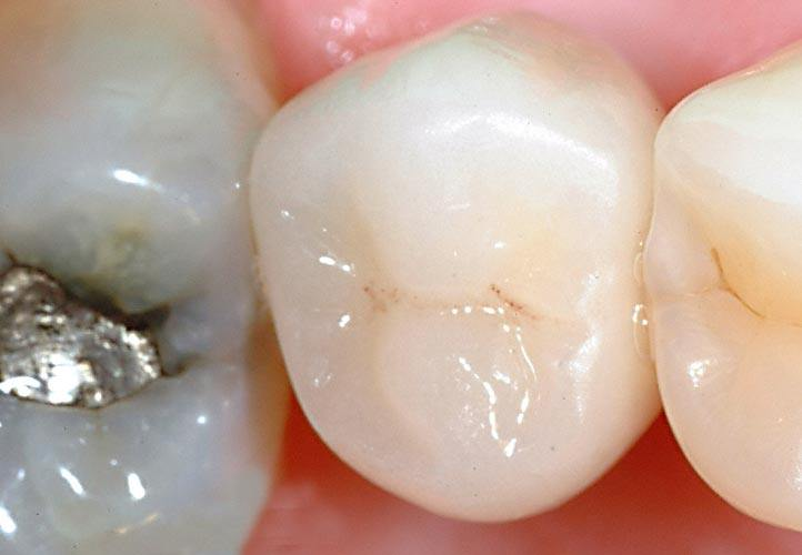 Dental implant with final crown photo