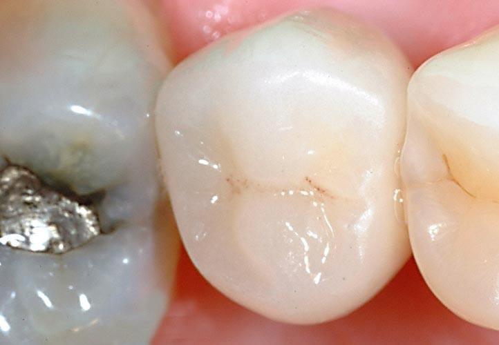 Dental Implants New York City 1.3