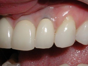 Before Gum Graft ~ Gray Pigmentation & Recession