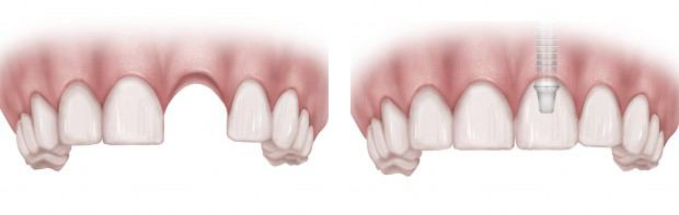 Dental Implants New York City