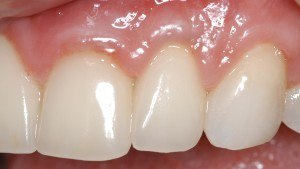 After Gum Graft ~ Gray Hue Eliminated-Crown margin covered
