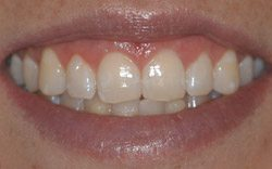 After Crown Lengthening by Dr. Kissel
