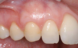 After Gum Graft ~ Increased Tissue & Root Coverage ~ Dr Kissel NYC