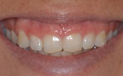 Before Crown Lengthening by Periodontist Dr. Kissel