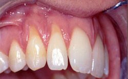Gum Recession Photo- Dr. Kissel Periodontist New York City