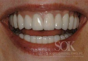 https://implant-periodontist-nyc.com/wp-content/uploads/2015/06/All-On-4-New-York-City-Patient-1.2-300x209.jpg