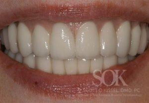 https://implant-periodontist-nyc.com/wp-content/uploads/2015/06/All-On-4-New-York-City-Patient-1.3-300x209.jpg
