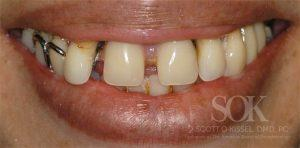 https://implant-periodontist-nyc.com/wp-content/uploads/2015/06/All-On-4-New-York-City-Patient-3-1-300x148.jpg