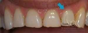 https://implant-periodontist-nyc.com/wp-content/uploads/2015/06/Dental-Implants-Before-and-After-Photos-New-York-City-Patient-1.1-300x113.jpg