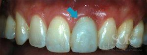 https://implant-periodontist-nyc.com/wp-content/uploads/2015/06/Dental-Implants-Before-and-After-Photos-New-York-City-Patient-2.1-2-300x113.jpg