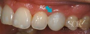 https://implant-periodontist-nyc.com/wp-content/uploads/2015/06/Dental-Implants-Before-and-After-Photos-New-York-City-Patient-3-300x113.jpg