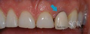 https://implant-periodontist-nyc.com/wp-content/uploads/2015/06/Dental-Implants-New-York-City-Patient-1-Before-300x113.jpg