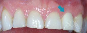 https://implant-periodontist-nyc.com/wp-content/uploads/2015/06/Dental-Implants-New-York-City-Patient-1.2-After-300x113.jpg
