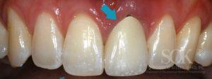 https://implant-periodontist-nyc.com/wp-content/uploads/2015/06/Dental-Implants-New-York-City-Patient-2-1-Before-300x113.jpg