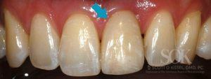 https://implant-periodontist-nyc.com/wp-content/uploads/2015/06/Dental-Implants-New-York-City-Patient-2.2-1-After-300x113.jpg