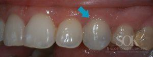 https://implant-periodontist-nyc.com/wp-content/uploads/2015/06/Dental-Implants-New-York-City-Patient-3-Before-300x113.jpg