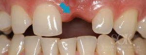 https://implant-periodontist-nyc.com/wp-content/uploads/2015/06/Dental-Implants-New-York-City-Patient-4-Before-300x113.jpg