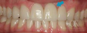 https://implant-periodontist-nyc.com/wp-content/uploads/2015/06/Dental-Implants-New-York-City-Patient-4.-After-300x113.jpg