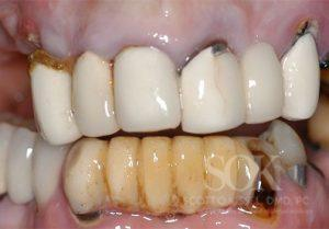 https://implant-periodontist-nyc.com/wp-content/uploads/2015/06/Full-Mouth-Reconstruction-New-York-City-Patient-1-300x209.jpg