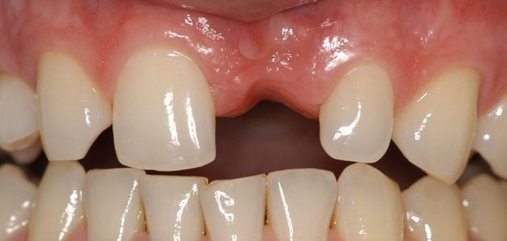 Case Study #4 After Dental Implant