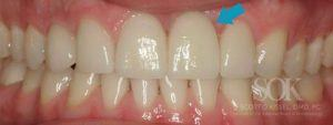 https://implant-periodontist-nyc.com/wp-content/uploads/2015/06/Manhattan-Dental-Implants-Before-and-After-Photos-Patient-1.1-300x113.jpg