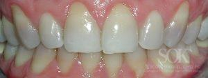 https://implant-periodontist-nyc.com/wp-content/uploads/2015/06/Periodontist-Periodontics-and-Periodontitis-New-York-City-Patient-1-300x113.jpg