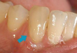 https://implant-periodontist-nyc.com/wp-content/uploads/2015/06/Periodontist-Periodontics-and-Periodontitis-New-York-City-Patient-4-1-After-300x209.jpg