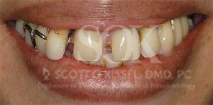 https://implant-periodontist-nyc.com/wp-content/uploads/2015/06/all-on-4-new-york-city-patient3-before-300x148.jpg