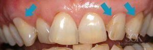 https://implant-periodontist-nyc.com/wp-content/uploads/2015/06/gum-graft-new-york-city-patient1-After-300x98.jpg