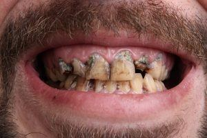 bad tooth decay photo