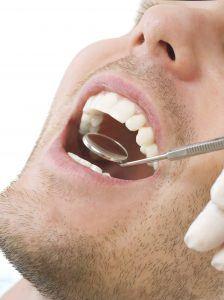 Periodontitis New York City