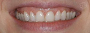 https://implant-periodontist-nyc.com/wp-content/uploads/2019/12/kissel-new-york-city-aesthetic-procedures-patient-1-after-300x113.jpg