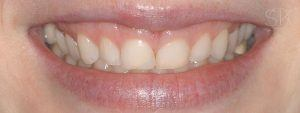 https://implant-periodontist-nyc.com/wp-content/uploads/2019/12/kissel-new-york-city-aesthetic-procedures-patient-1-before-300x113.jpg