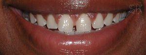 https://implant-periodontist-nyc.com/wp-content/uploads/2019/12/kissel-new-york-city-aesthetic-procedures-patient-2-after-300x113.jpg
