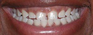 https://implant-periodontist-nyc.com/wp-content/uploads/2019/12/kissel-new-york-city-aesthetic-procedures-patient-2-before-300x113.jpg