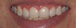 https://implant-periodontist-nyc.com/wp-content/uploads/2019/12/kissel-new-york-city-aesthetic-procedures-patient-3-after-300x113.jpg