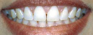 https://implant-periodontist-nyc.com/wp-content/uploads/2019/12/kissel-new-york-city-aesthetic-procedures-patient-4-after-300x113.jpg