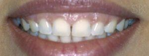 https://implant-periodontist-nyc.com/wp-content/uploads/2019/12/kissel-new-york-city-aesthetic-procedures-patient-4-before-300x113.jpg