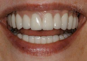 https://implant-periodontist-nyc.com/wp-content/uploads/2019/12/kissel-new-york-city-all-on-4-patient-1-1-after-300x210.jpg