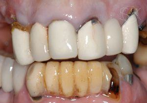 https://implant-periodontist-nyc.com/wp-content/uploads/2019/12/kissel-new-york-city-all-on-4-patient-1-1-before-300x210.jpg