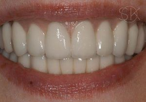 https://implant-periodontist-nyc.com/wp-content/uploads/2019/12/kissel-new-york-city-all-on-4-patient-1-2-after-300x210.jpg