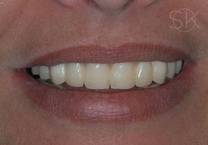 https://implant-periodontist-nyc.com/wp-content/uploads/2019/12/kissel-new-york-city-all-on-4-patient-2-after-300x210.jpg