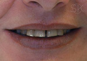 https://implant-periodontist-nyc.com/wp-content/uploads/2019/12/kissel-new-york-city-all-on-4-patient-2-before-300x210.jpg