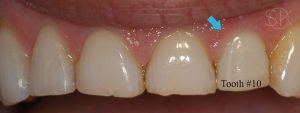 https://implant-periodontist-nyc.com/wp-content/uploads/2019/12/kissel-new-york-city-dental-implants-patient-1-after-one-week-300x113.jpg