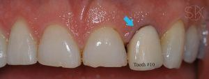 https://implant-periodontist-nyc.com/wp-content/uploads/2019/12/kissel-new-york-city-dental-implants-patient-1-before-300x113.jpg
