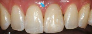 https://implant-periodontist-nyc.com/wp-content/uploads/2019/12/kissel-new-york-city-dental-implants-patient-2.1-after-300x113.jpg