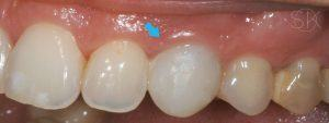 https://implant-periodontist-nyc.com/wp-content/uploads/2019/12/kissel-new-york-city-dental-implants-patient-3.1-before-300x113.jpg