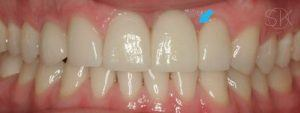 https://implant-periodontist-nyc.com/wp-content/uploads/2019/12/kissel-new-york-city-dental-implants-patient-4-after-300x113.jpg