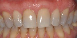 https://implant-periodontist-nyc.com/wp-content/uploads/2019/12/kissel-new-york-city-gum-tissue-graft-patient-2-after-300x150.jpg