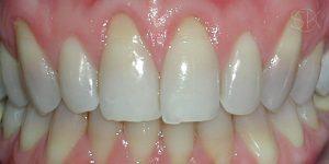 https://implant-periodontist-nyc.com/wp-content/uploads/2019/12/kissel-new-york-city-gum-tissue-graft-patient-2-before-300x150.jpg